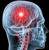 Imagen cerebral
